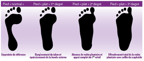 Le microorganisme végétal sur les pieds linflammation